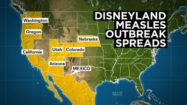 California measles outbreak grows to 68 cases