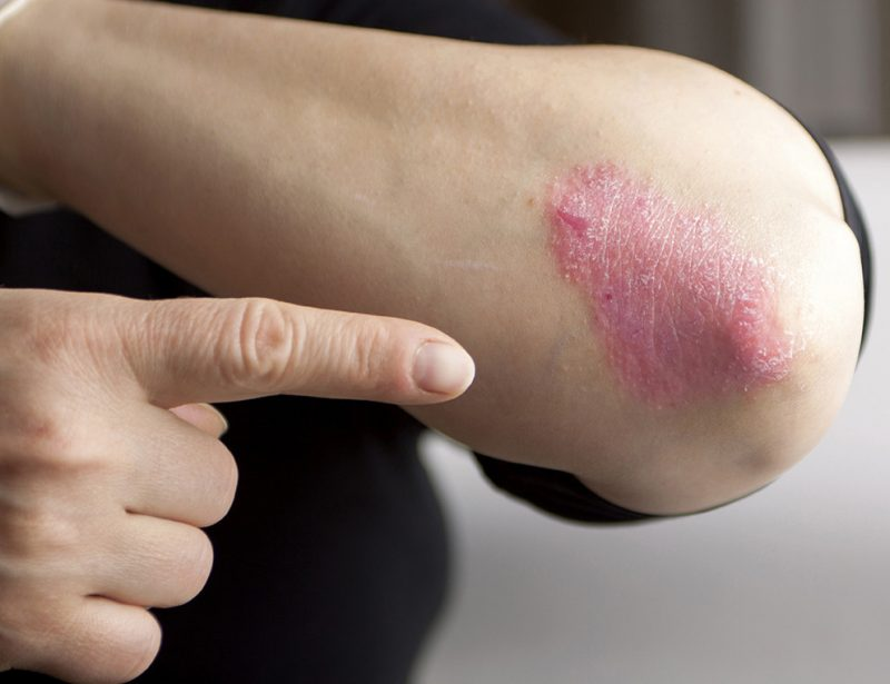 The Medical Minute: Clearing Up Common Myths About Psoriasis