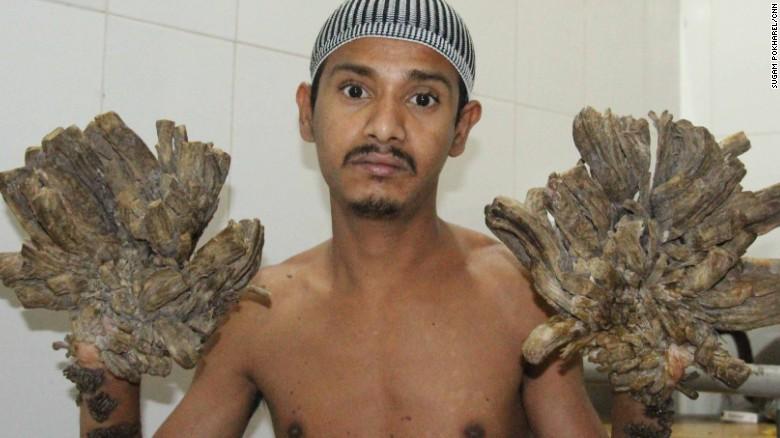 160226124307-tree-man-bangladesh-1-exlarge-tease