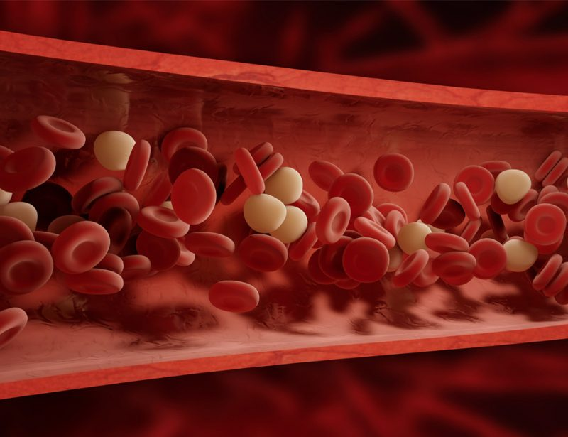 The Medical Minute: Many Treatments Can Mitigate Blood Clot Dangers