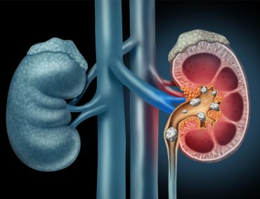 The Medical Minute: Kidney Stone Prevention is Worth the Time