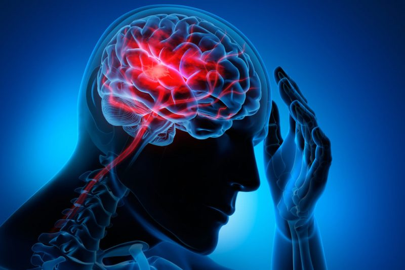 The Medical Minute: Prevent a Stroke by Knowing Your Risks